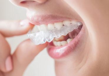 Invisalign-370x260 milpitas cosmetic dentist
