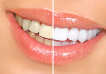 Teeth_beforeafter-370x260 milpitas cosmetic dentist