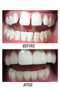 VENEERS1-200x300 milpitas cosmetic dentist